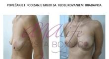 1538661527_plastična hirurgija operacije grudi galerija 2