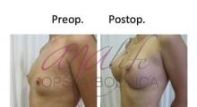 1538661527_plastična hirurgija operacije grudi galerija