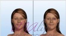 1538661530_plastična hirurgija operacije grudi galerija 13