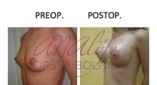 1538661531_plastična hirurgija operacije grudi galerija 18