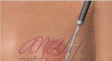 1538661531_plastična hirurgija operacije grudi galerija 21