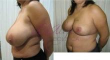 1538661533_plastična hirurgija operacije grudi galerija 32