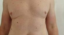 1538663599_plastična hirurgija dermolipektomija galerija