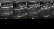 1542880061_01.ultrazvuk ahilove tetive galerija