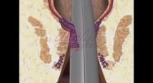 1542969139_04.hemoroidi šta su hemoroidi galerija