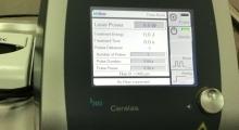 1542969506_08.hemoroidi laserska operacija hemoroida galerija