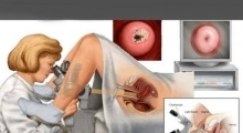 1543050622_05.ginekologija ginekoloski pregled galerija