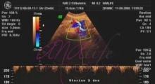 1543228335_04.trudnoća ekspertski 4D ultrazvuk od 20 24 nedelje trudnoće galerija