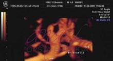 1543228338_08.trudnoća ekspertski 4D ultrazvuk od 20 24 nedelje trudnoće galerija