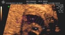 1543228341_11.trudnoća ekspertski 4D ultrazvuk od 20 24 nedelje trudnoće galerija