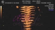 1543228768_06.trudnoća ekspertski 4D ultrazvuk od 25 27 nedelje trudnoće galerija
