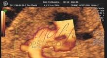 1543228768_07.trudnoća ekspertski 4D ultrazvuk od 25 27 nedelje trudnoće galerija