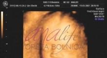 1543228771_13.trudnoća ekspertski 4D ultrazvuk od 25 27 nedelje trudnoće galerija