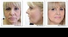 1543489027_02.plasticna hirurgija faceLift macs lift galerija