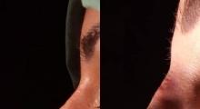 1545587165_plastična hirurgija operacija nosa galerija 8