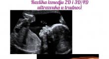 1550308935_03.trudnoca galerija