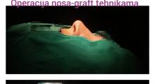 1552910200_plastična hirurgija operacija nosa galerija 11