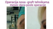 1552910202_plastična hirurgija operacija nosa galerija 14