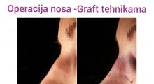 1552910290_plastična hirurgija operacija nosa galerija 16