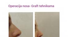1552910291_plastična hirurgija operacija nosa galerija 17