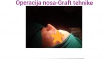 1552910291_plastična hirurgija operacija nosa galerija 19