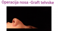 1552910292_plastična hirurgija operacija nosa galerija 21