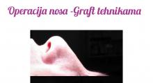1552910293_plastična hirurgija operacija nosa galerija 25