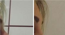 1552910294_plastična hirurgija operacija nosa galerija 27