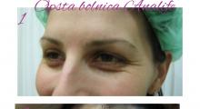 1553512579_01.plastična hirurgija podizanje obrva i čela galerija