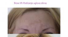 1553512581_02.plastična hirurgija podizanje obrva i čela galerija