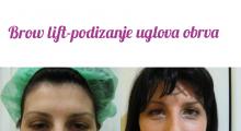 1553512582_03.plastična hirurgija podizanje obrva i čela galerija