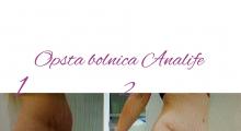 1553513358_plastična hirurgija dermolipektomija galerija 13