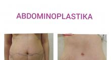 1553513359_plastična hirurgija dermolipektomija galerija 16