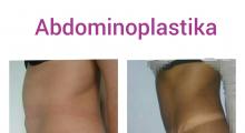 1553513360_plastična hirurgija dermolipektomija galerija 18