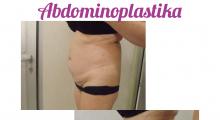 1553513360_plastična hirurgija dermolipektomija galerija 19
