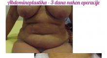 1553513362_plastična hirurgija dermolipektomija galerija 22