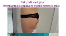 1553515064_plastična hirurgija transplantacija masti i matičnih ćelija u zadnjicu galerija 5