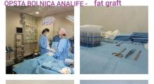 1553515068_plastična hirurgija transplantacija masti i matičnih ćelija u zadnjicu galerija 10