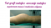 1553515068_plastična hirurgija transplantacija masti i matičnih ćelija u zadnjicu galerija 9