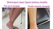 1553515843_fizikalna medicina i rehabilitacija laser u fizikalnoj medicini galerija 5