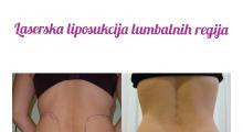 1553592676_plastična hirurgija laserska liposukcija stomaka struka ledja galerija 15