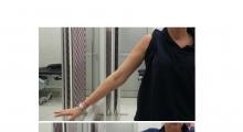 1553596660_01.fizikalna medicina i rehabilitacija bolesti ramenog zgloba galerija