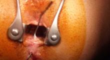 1553680781_10.hemoroidi fistule galerija