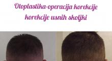 1553765351_plastična hirurgija operacije ušiju galerija 16