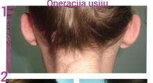 1553765405_plastična hirurgija operacije ušiju galerija 28