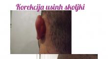 1553765409_plastična hirurgija operacije ušiju galerija 31