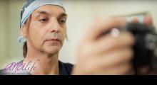 1553850475_plastična hirurgija operacija nosa galerija 30