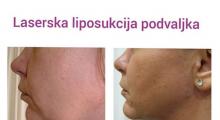 1553854867_04.plasticna hirurgija laserska liposukcija podvaljka i obraza