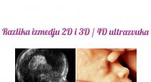 1554190945_11.trudnoca 4d vs 2d galerija