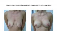 1554279362_plastična hirurgija podizanje grudi galerija 6
